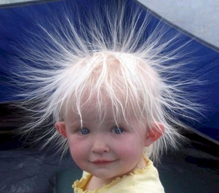 Kid with static hair